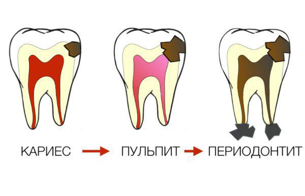 karies-pulpit-periodontit