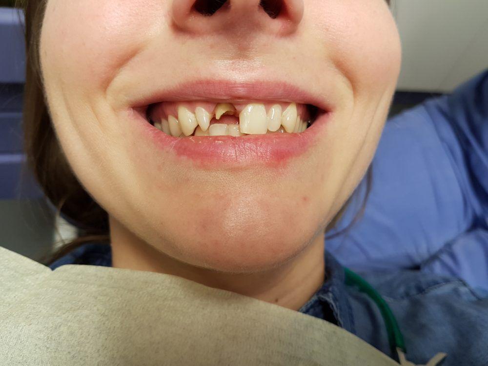 отбеливание зубов zoom 4 что это