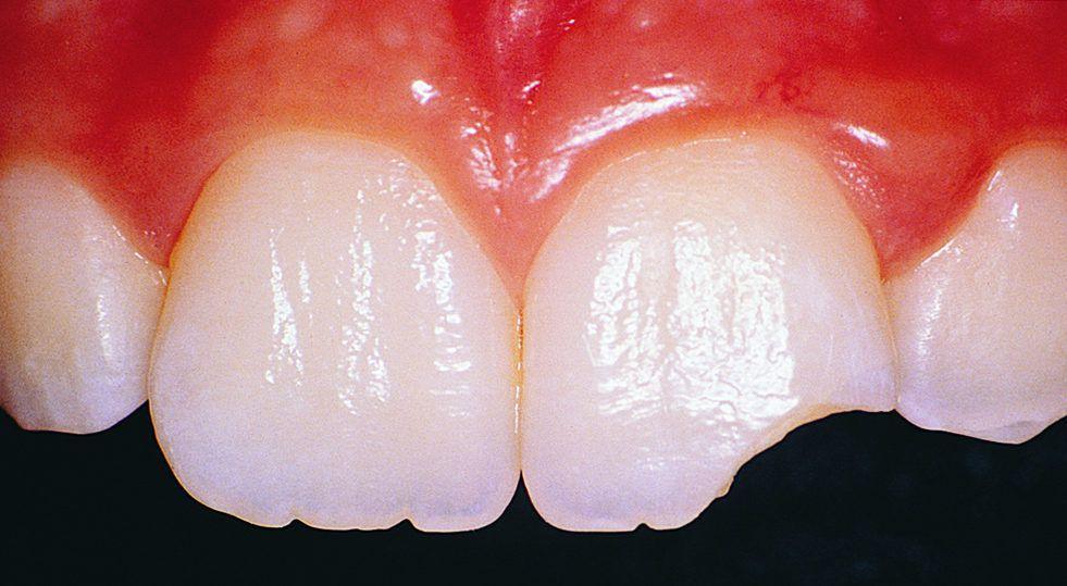 Сколотый зуб