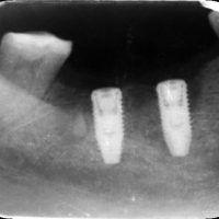 Рентгеновский снимок имплантов Nobel