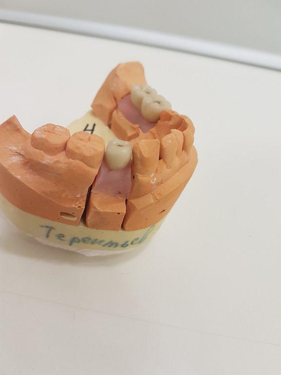 отбеливание зубов 3d white отзывы