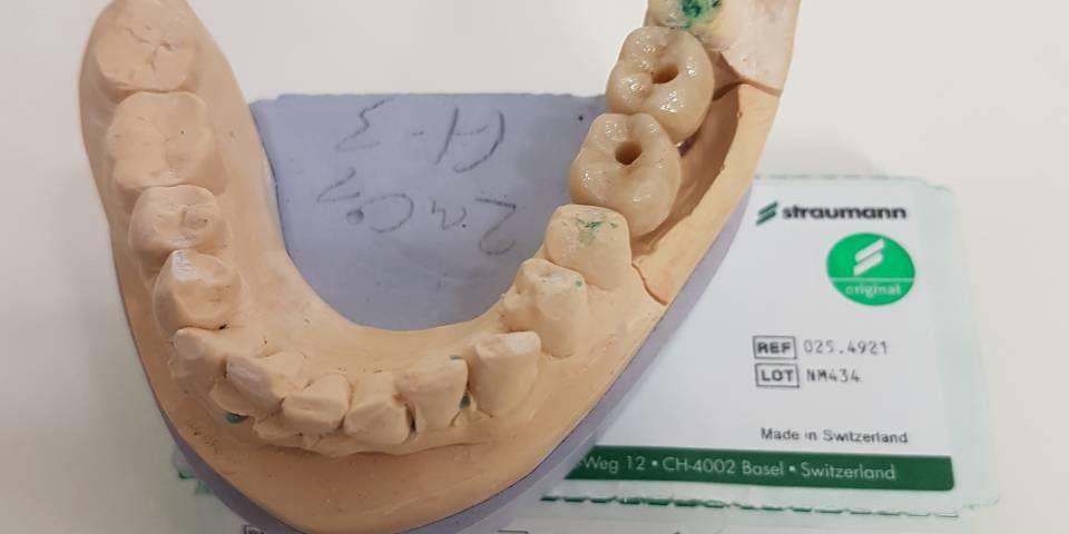 Имплантат на модели