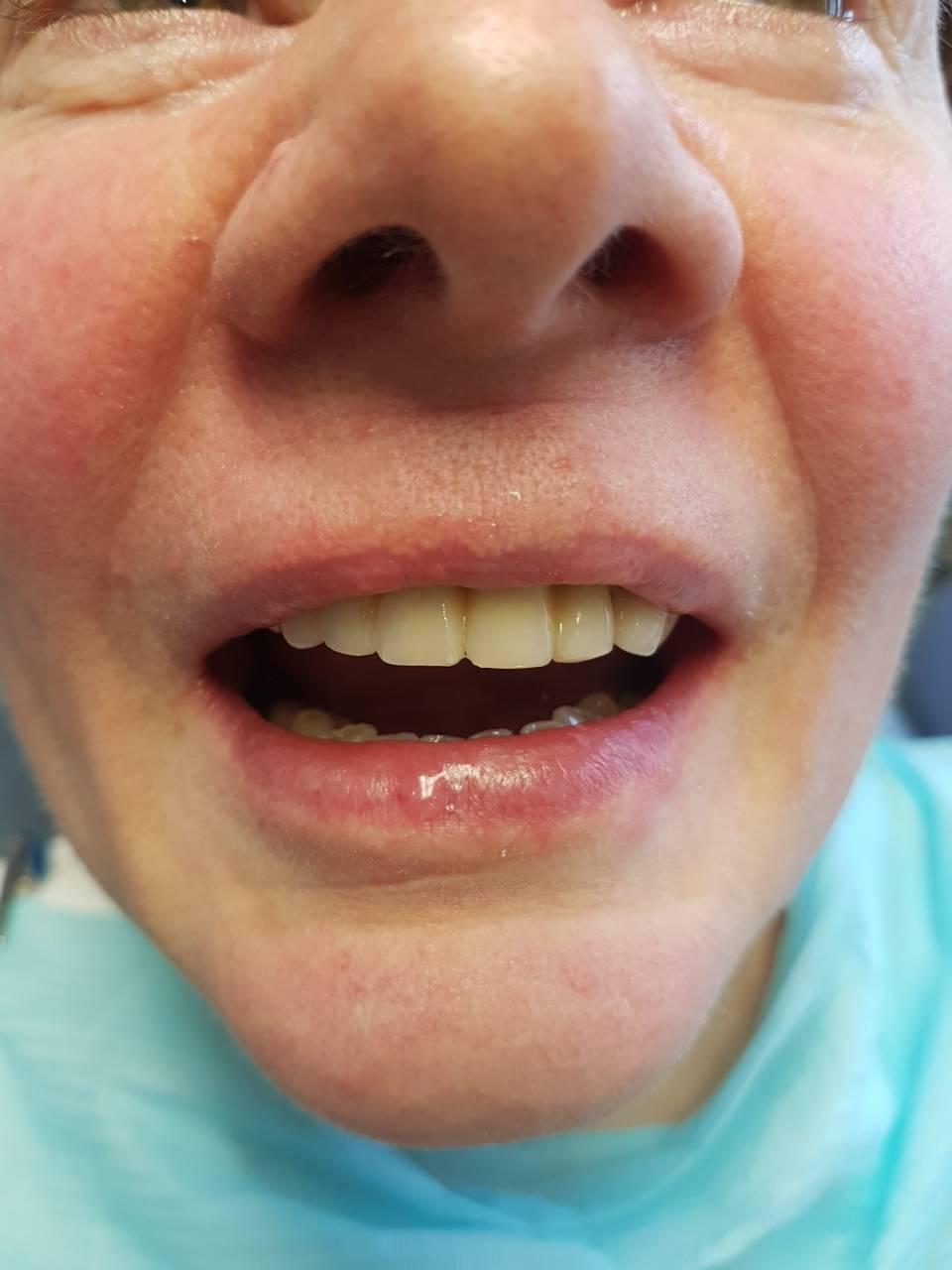 отбеливание зубов zoom акция