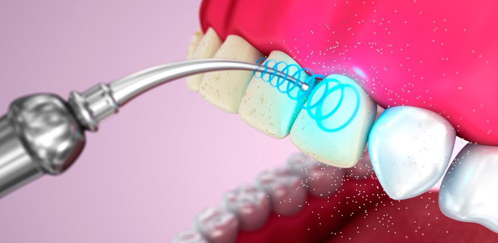 Удаления зубного камня ультразвуком