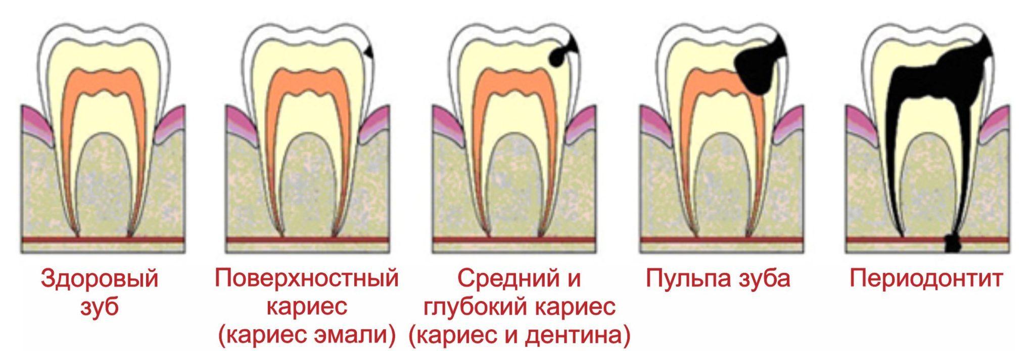 Бывает ли пульпит молочных зубов