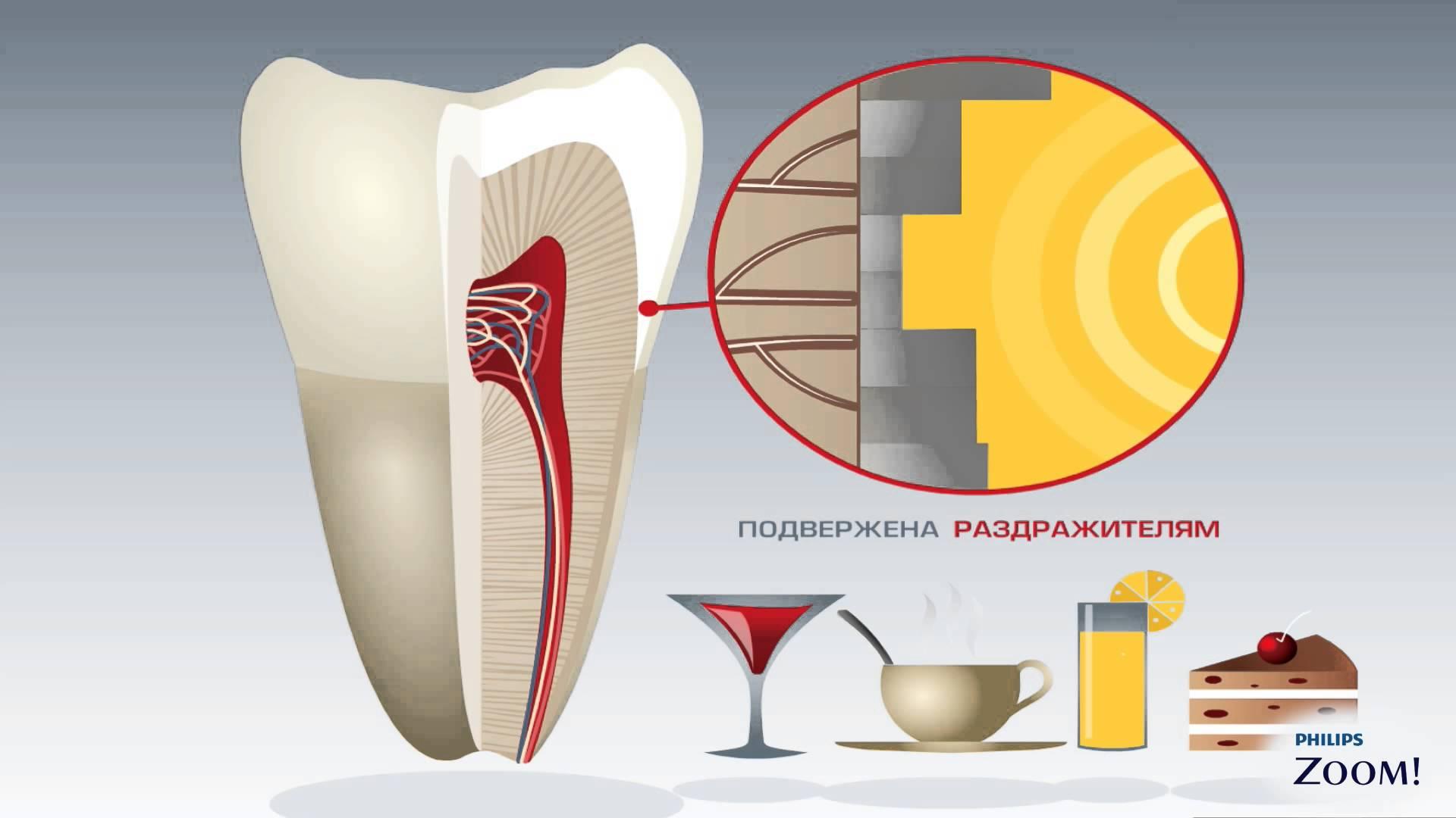 Причины чувствительных зубов