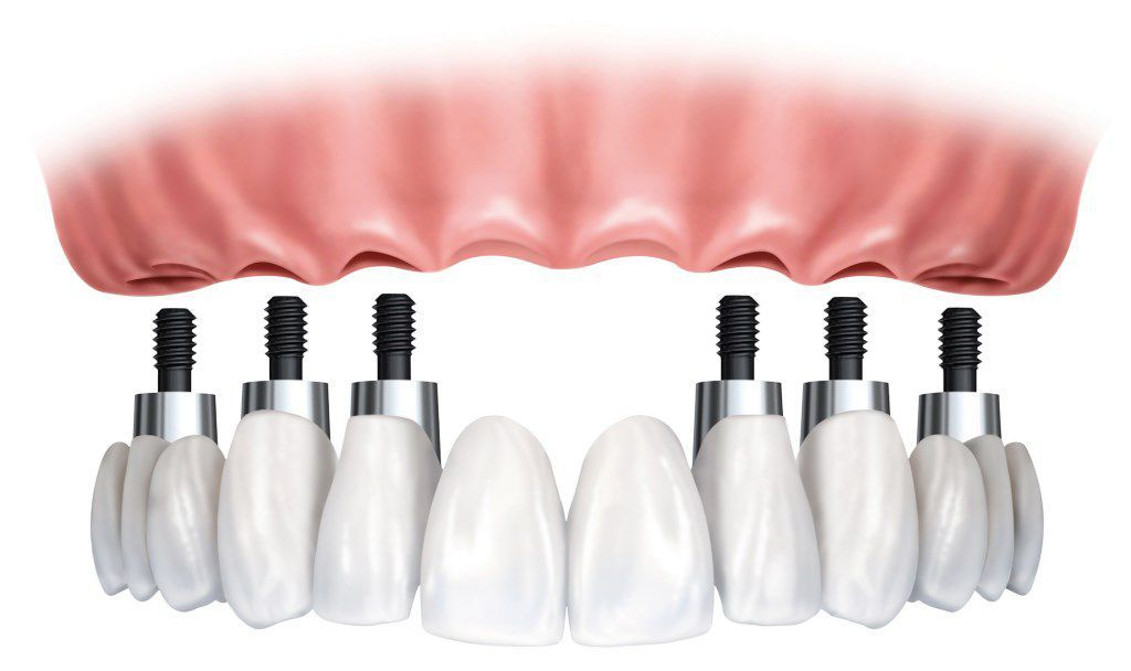 implant-bridge-and-crowns