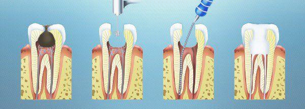 Чем плохо если удален нерв в зубе