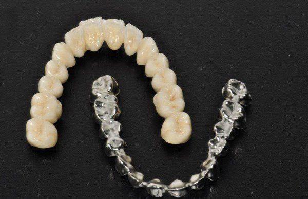 Коронки на зубы из металлокерамики (kornident.ru)
