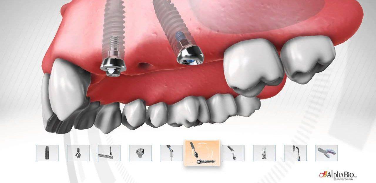 После установки импланта зуба болят все зубы