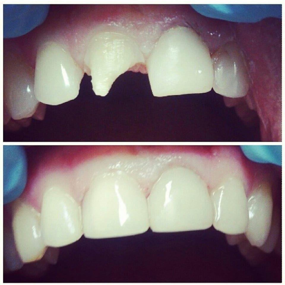 Реставрация сколотых зубов