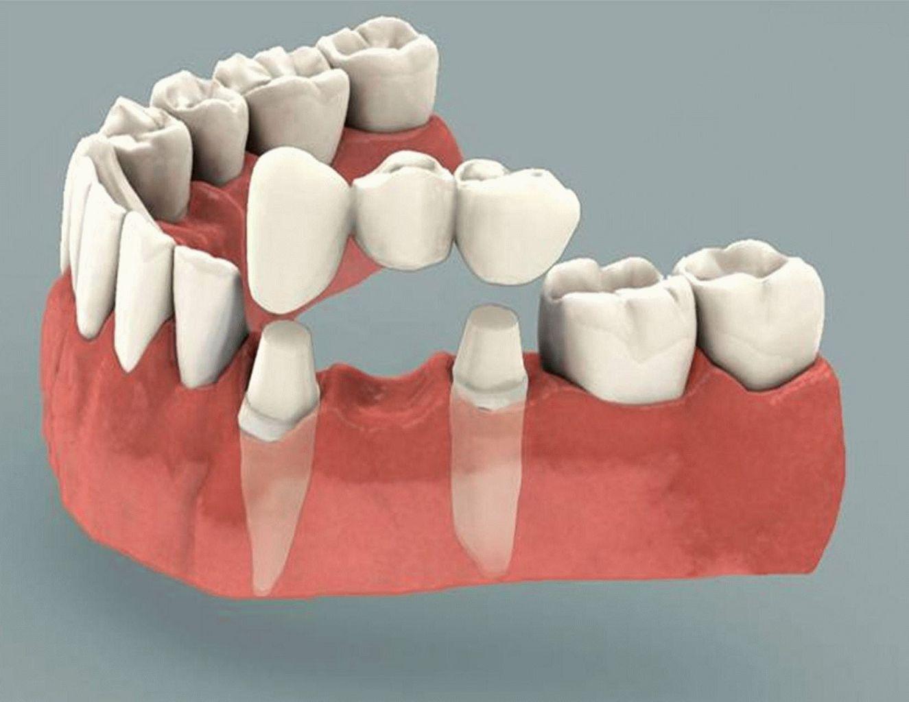 Мостовидный протез для восстановления одного зуба